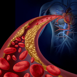 Determinación del riesgo cardiovascular