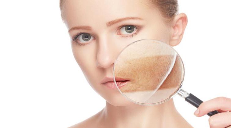 Hiperpigmentació cutània