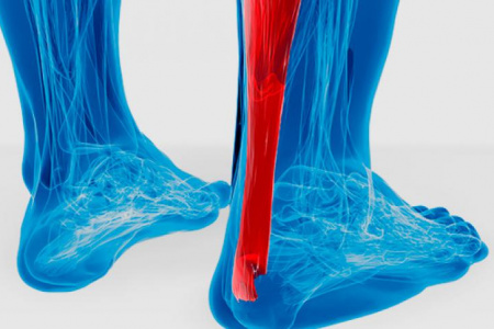 Tendinitis : causa y tratamiento