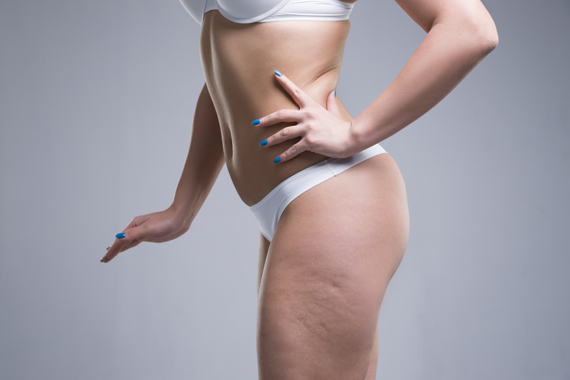 ¿Cómo eliminar la celulitis?
