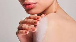 Taques blanques a la pell?